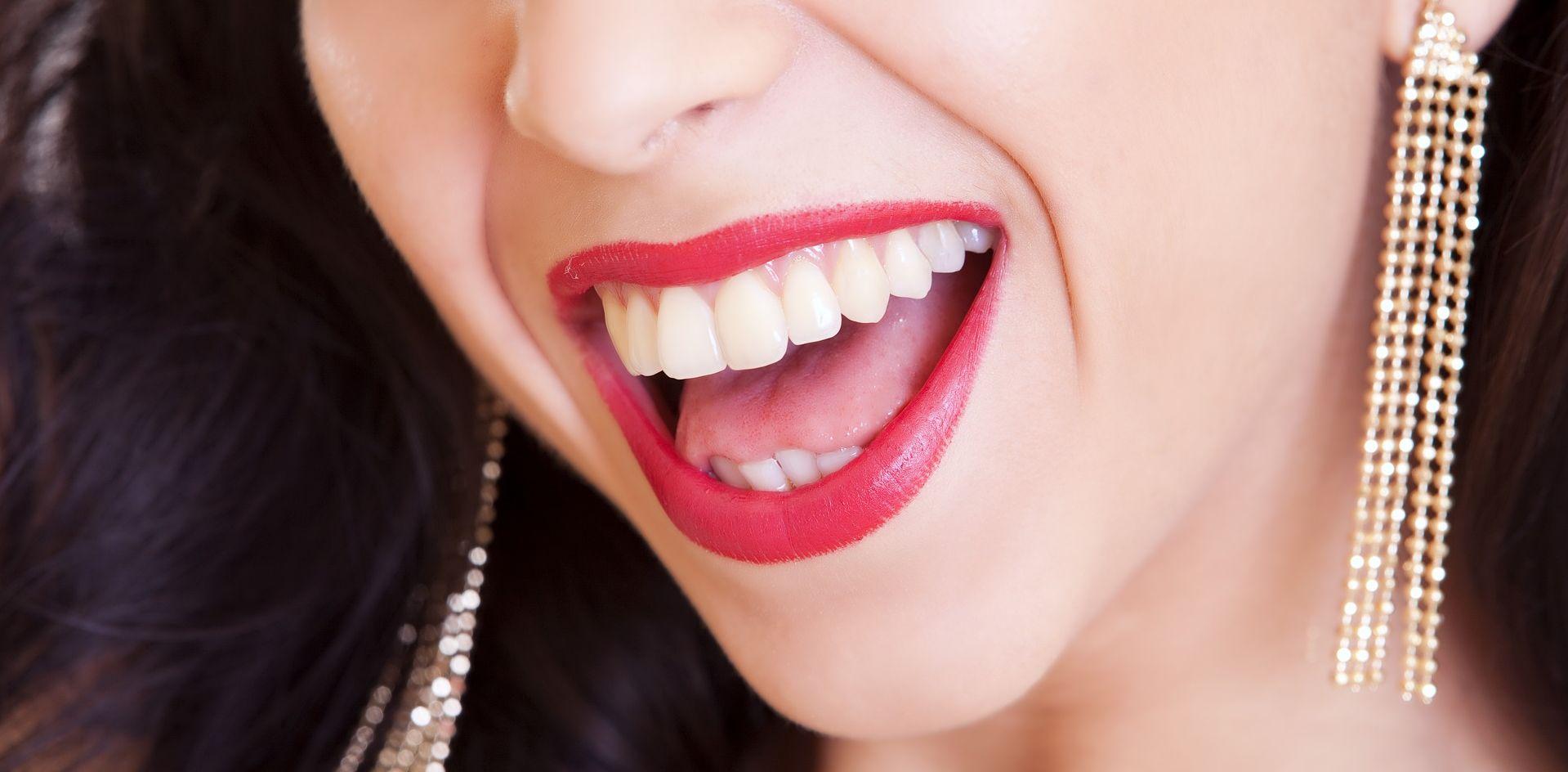 Šypsokitės plačiai: geriausias balinimo būdas jūsų dantims